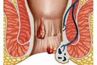 Can Hemorrhoids Cause Constipation And Bloating