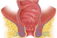 afte hemorrhoid surgery picture