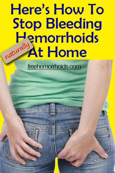 How To Stop Hemorrhoid Bleeding Naturally At Home