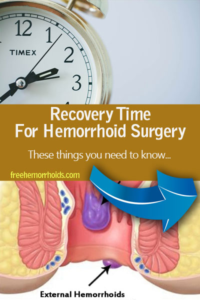 Recovery Time For Hemorrhoid Surgery : How Long Average Normal Time Needed?