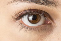 corneal edema symptoms cause and treatment