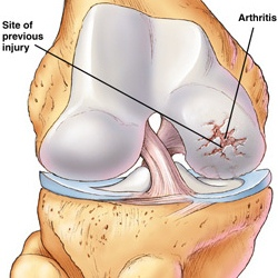 How To Treat Arthritis Early Of Knee Joint