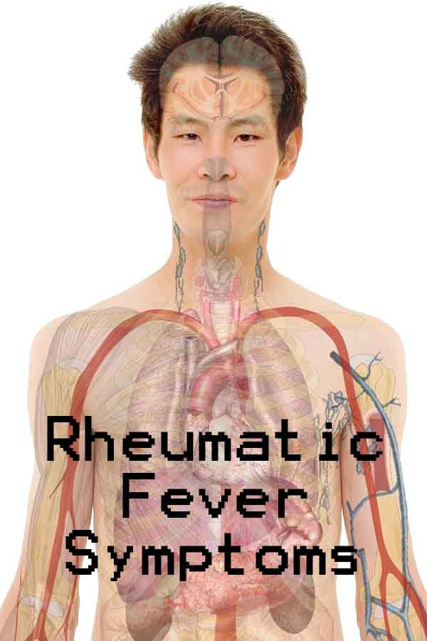 Rheumatic Fever Disease Symptoms